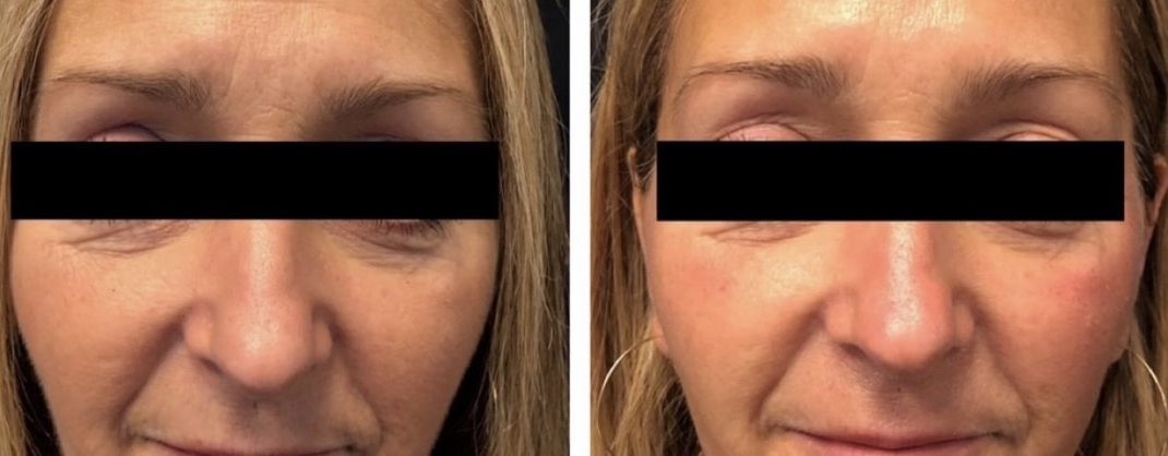 Immediately After 1 Treatment