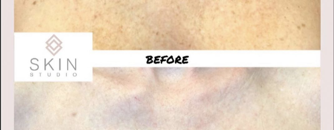 After 2 Treatments