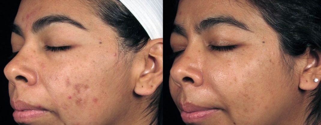 Treatment of post-inflammatory hyperpigmentation - 5 dermalinfusion treatments - once every two weeks with skin brightening pro-infusion serum with Lumixyl + twice daily use Lumixyl Brightening Cream*