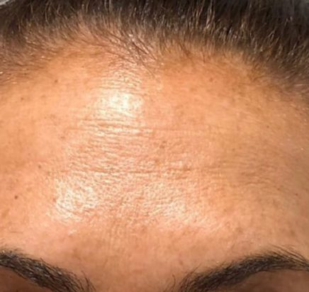 After Toxins (Botox & Xeomin)