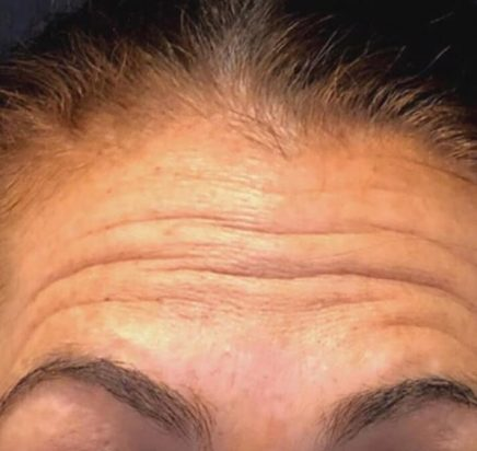 Before Toxins (Botox & Xeomin)